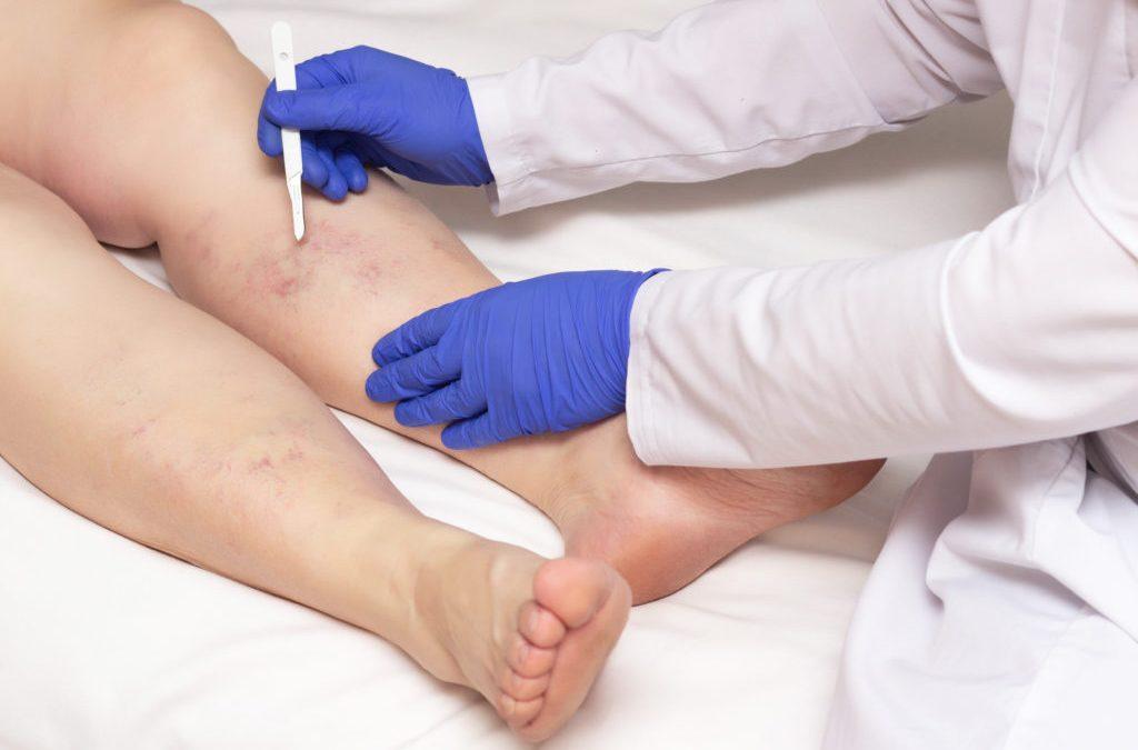Saiba como prevenir doenças vasculares