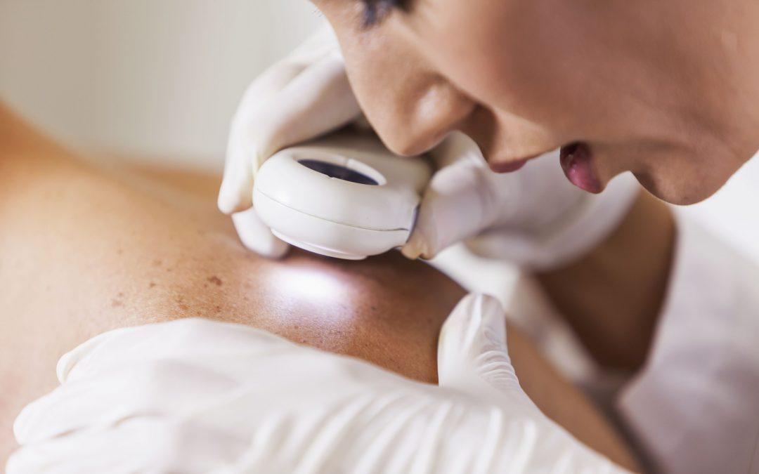 Saiba como prevenir o câncer de pele